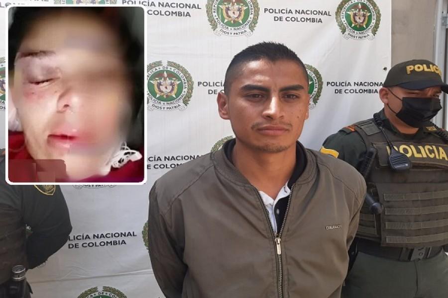 A golpes le desfiguró el rostro a su pareja en Oporapa